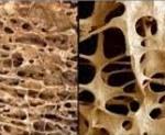 Остеопороз МКБ 10 — характеристика болезни