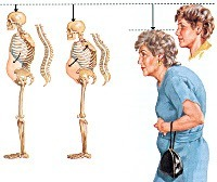 Постменопаузальный остеопороз