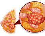 N60.2 Фиброаденоз молочной железы