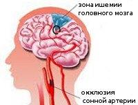 I65.2 Закупорка и стеноз сонной артерии