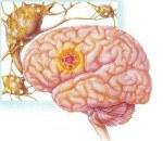 G40.2 Локализованная (фокальная) (парциальная) симптоматическая эпилепсия и эпилептические синдромы с комплексными парциальными судорожными припадками