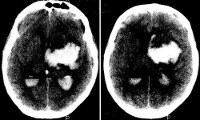 I61.5 Внутримозговое кровоизлияние внутрижелудочковое