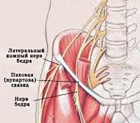 Невропатия наружного кожного нерва бедра