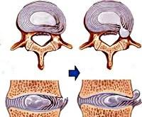 Межпозвоночная грыжа грудного отдела