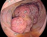 Опухоли толстого кишечника