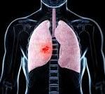 Пневмония: классификация по МКБ 10. Диагностика и лечение пневмонии в Москве
