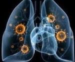 Сегментарная пневмония код по мкб 10