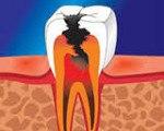 Пульпит зуба что это код по МКБ-10 пульпитный патогенез осложнения как выглядит профилактика зубная клиника последствия