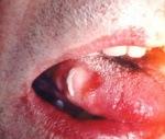 Декубитальная язва полости рта