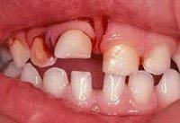 S02.5 Перелом зуба