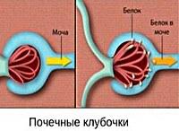Гипертензивная нефропатия