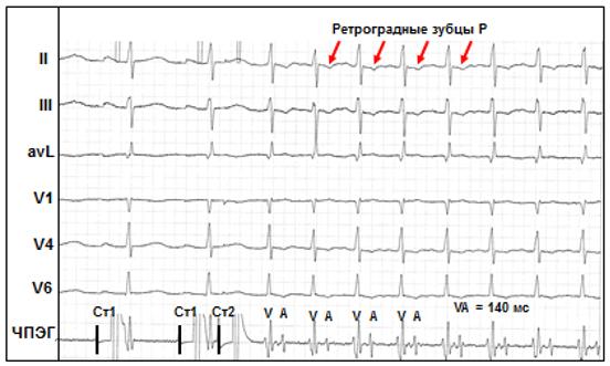 Рис. 9. Индукция пароксизмальной ортодромной тахикардии у больного со скрытым пучком Кента при проведении ЧПЭС.