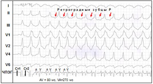 Рис. 10. Синдром ВПУ. Индукция пароксизмальной антидромной тахикардии одиночным экстрастимулом (Ст2) при проведении ЧПЭС.