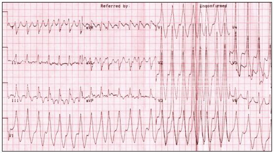 Рис. 11. Фибрилляция предсердий у больного с синдромом ВПУ с проведением по п. Кента. Частота сокращений желудочков 160-300 в минуту.