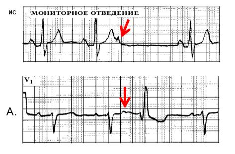 Рис. 2. Предсердные экстрасистолы. А - блокированная предсердная экстрасистола (ПЭ), 2Б. ПЭ с аберрантным проведением на желудочки (блокада правой ножки пучка Гиса).