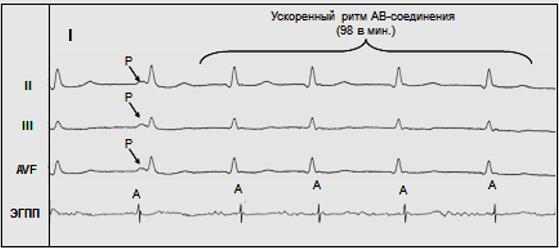 Рис. 3. Ускоренный ритм АВ-соединения.