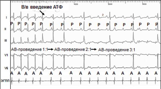 Рис. 4. Монофокусная ПТ с различной кратностью АВ-проведения. Проба с в/в введением АТФ.