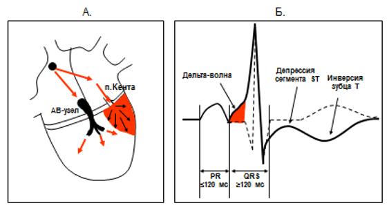 Рис. 7. Схема формирования электрокардиографических признаков предвозбуждения желудочков при синдроме Вольфа-Паркинсона-Уайта.