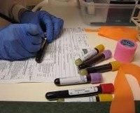 Простатоспецифический антиген (ПСА) свободный