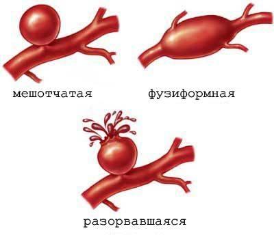 Аневризма головного мозга код по мкб 10