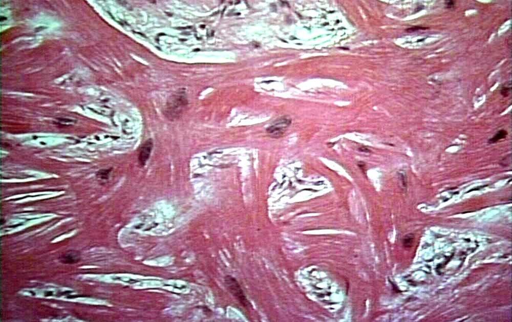 Аритмогенная кардиомиопатия правого желудочка (гистологически)