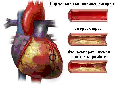 Атеросклероз коронарных артерий - причина развития стенокардии