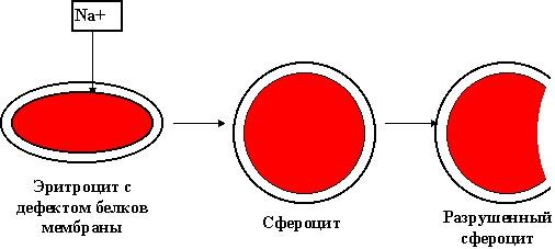 Наряду с нормальными эритроцитами при болезни Миньковского-Шофара имеются сфероциты