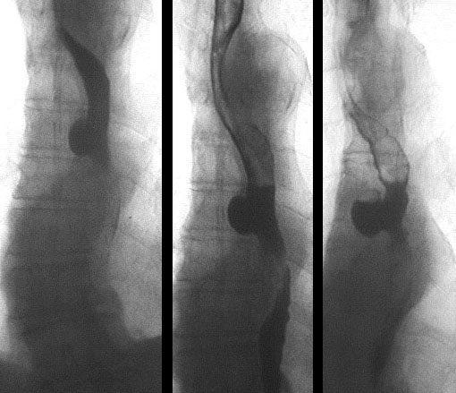 Дивертикулы пищевода при рентгенконтрастном исследовании