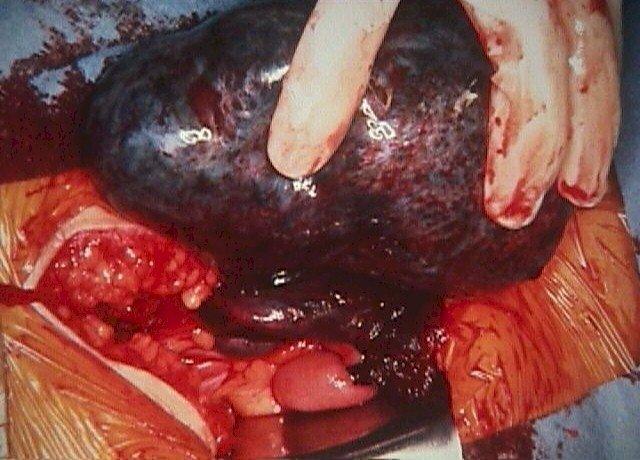 Что такое двухкамерная киста яичника и какое требуется лечение