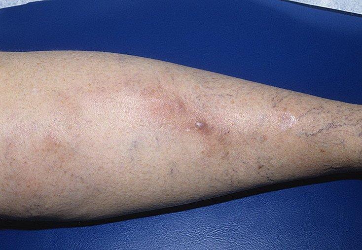 Клинические проявления флебита