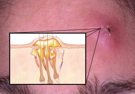 МКБ-10 Абсцесс кожи, фурункул и карбункул лица