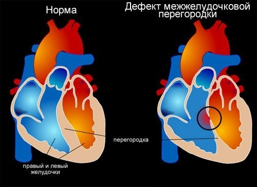 Наличие дефекта между правым и левым желудочками сердца.