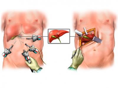 Лапаротомия и лапароскопия при ходецистэктомии