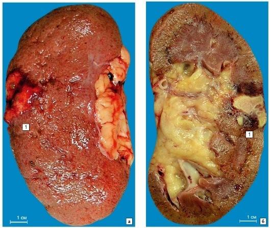 Ишемический инфаркт почки (макропрепарат)