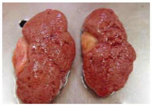 Кардиальный цирроз печени (мускатная печень). Макропрепарат.