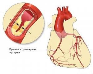 Код по мкб острый инфаркт миокарда