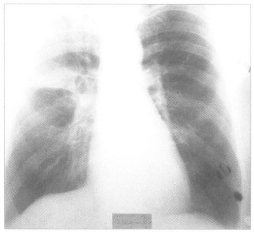 Крупозная пневмония на рентгенснимке