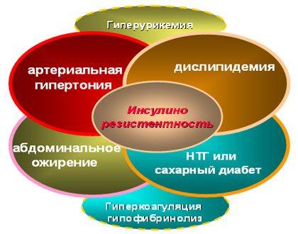 Основные звенья патогенеза метаболического синдрома