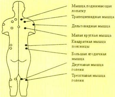 Точки возникновения миофасциального синдрома