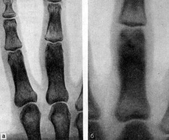Остеоид-остеома на рентгенограмме