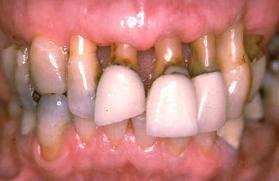 Поражение зубов при пародонтозе