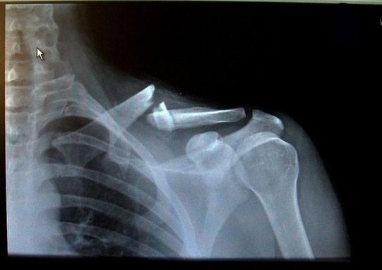 Перелом ключицы на рентгенограмме