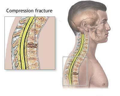 Оскольчатый перелом позвоночника мкб 10