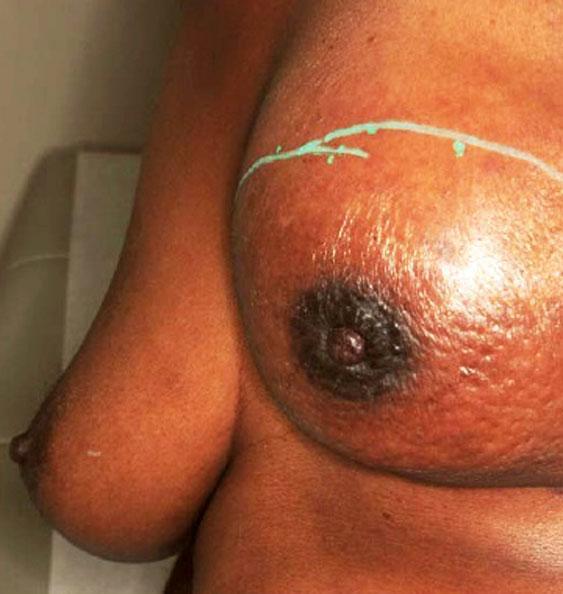 Рак молочной железы код по мкб 10