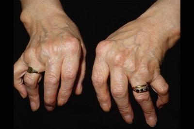 Суставные деформации при ревматоидном артрите