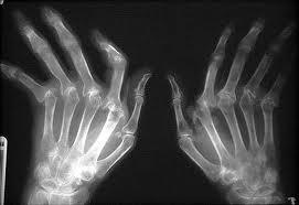 Рентгенография кистей при ревматоидном артрите