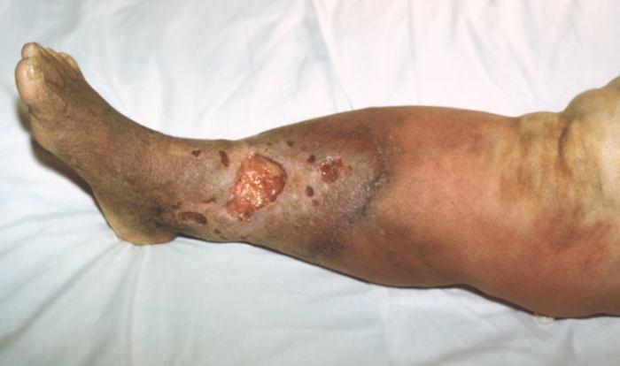 Некроз кожи при буллезно-геморрагической роже