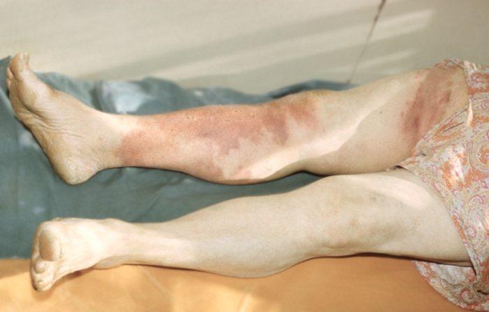 Эритематозно-геморрагическая рожа нижней конечности