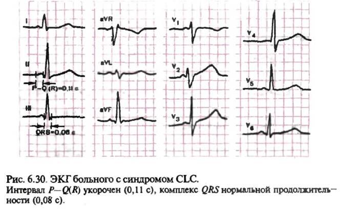 Синдром укороченного pq код по мкб 10