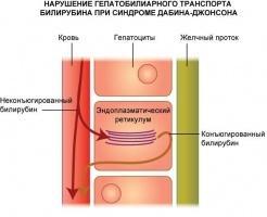 Синдром Дубина-Джонсона